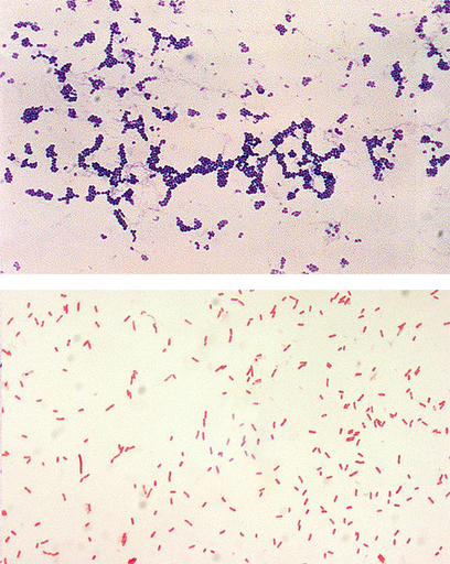 Microscopic images of gram positive and gram negative bacteria after gram staining, The image on the top presents gram positive bacteria shown as clusters of small, purple spheres on the white background. The image below presents gram negative bacteria shown as small pink spheres joined together like beads on a string, on white background.